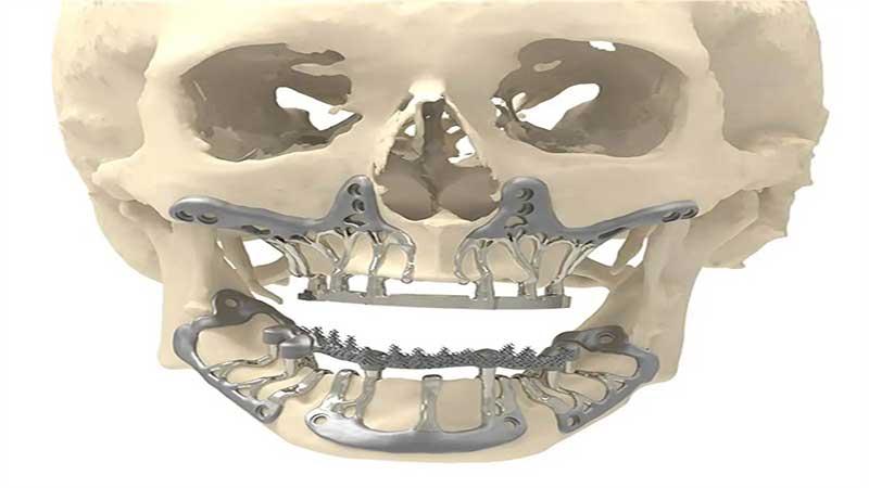 ایمپلنتهای دندانی زیر پریوستال چه مواردی را درمان میکنند؟ - روند ایمپلنت ساب پریوستیال