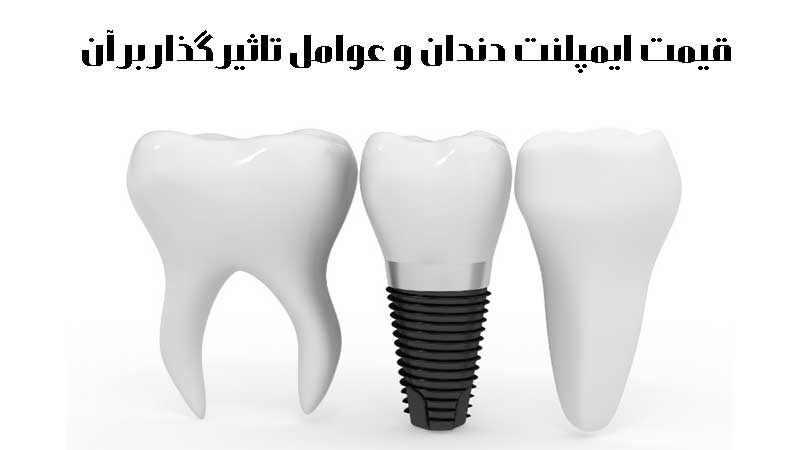 قیمت ایمپلنت دندان و عوامل تاثیر گذار بر آن