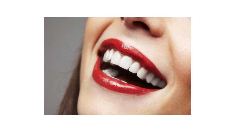 هزینه لبخند هالیوودی - لبخند هالیوود چیست
