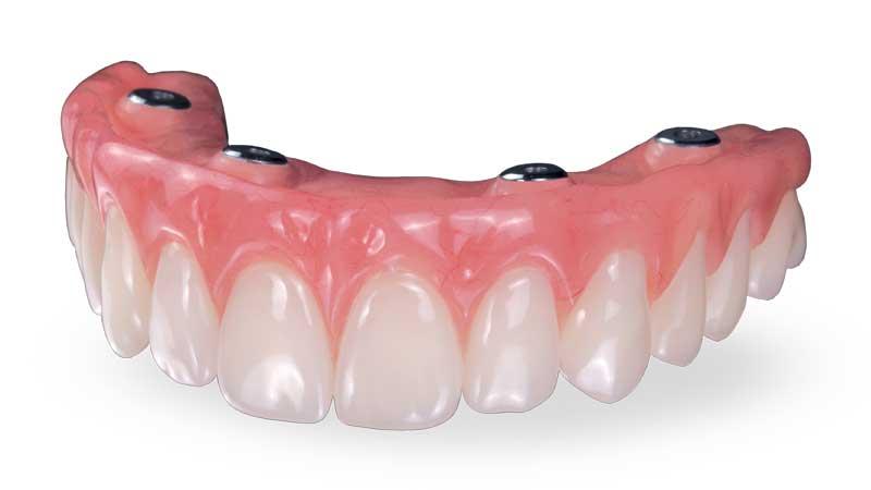 فرآیند انتقال از دندان مصنوعی به ایمپلنت