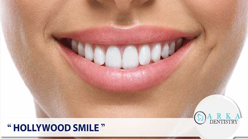 لبخند هالیوود چیست
