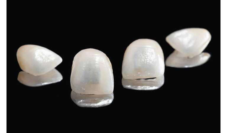 انواع ونیرهای دندان