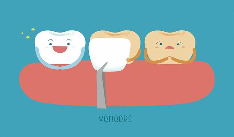 ونیرهای کامپوزیتی - ونیر دندان