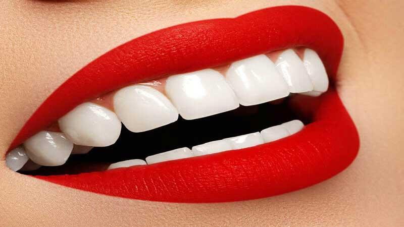 لبخند هالیوود با استفاده از روکش - لبخند هالیوود چیست