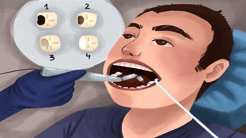مزایا و معایب پرکردن دندان با آمالگام - مزایای کامپوزیت دندان