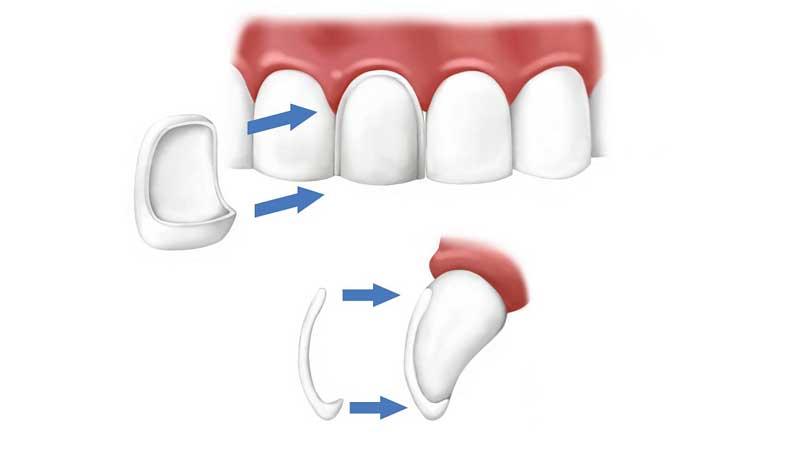 انتخاب بین لمینت و ونیر دندان - تفاوت کامپوزیت و لمینت