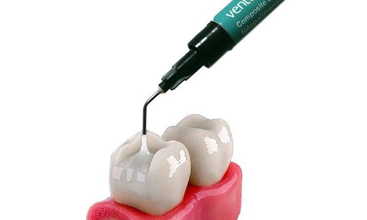مزایای کامپوزیت دندان برای ترمیم دندان
