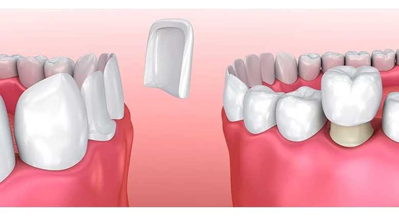 تفاوت کامپوزیت و لمینت دندان؛ کدام یک بهتر است؟