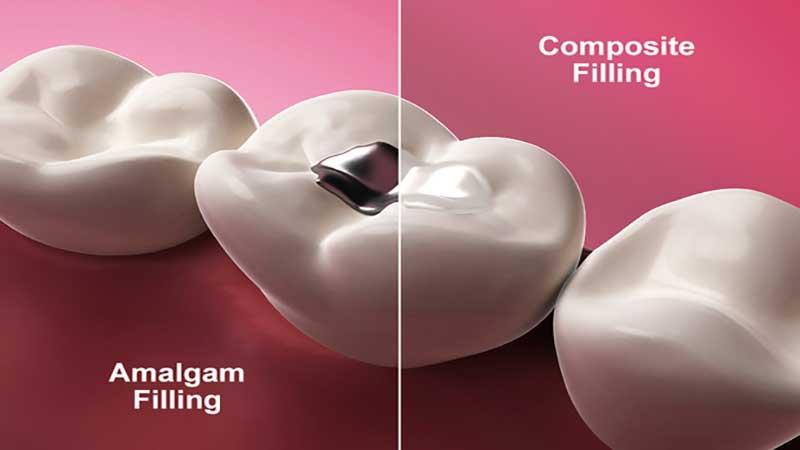 تفاوت آمالگام و کامپوزیت: کدام یک بهتر است؟ - مزایای کامپوزیت دندان