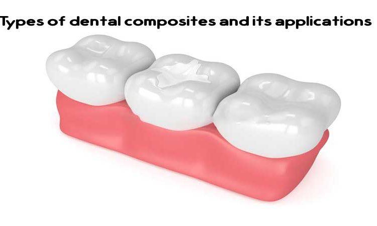 انواع کامپوزیت دندان و کاربردهای آن