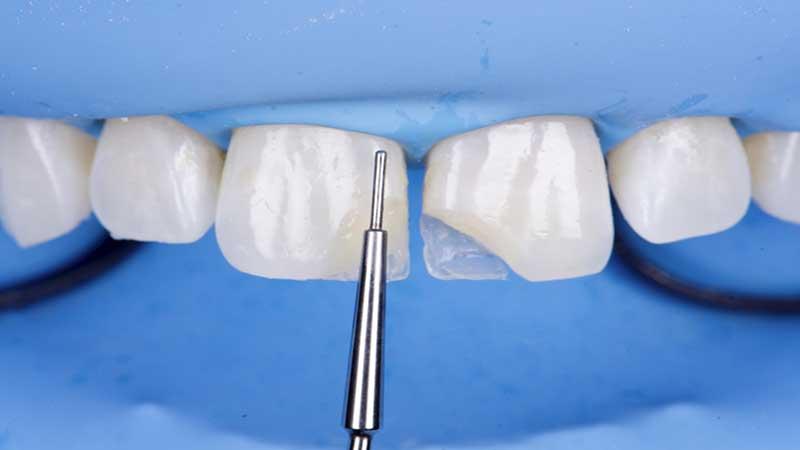 انواع کامپوزیتهای دندانی و کاربرد آنها در دندانپزشکی