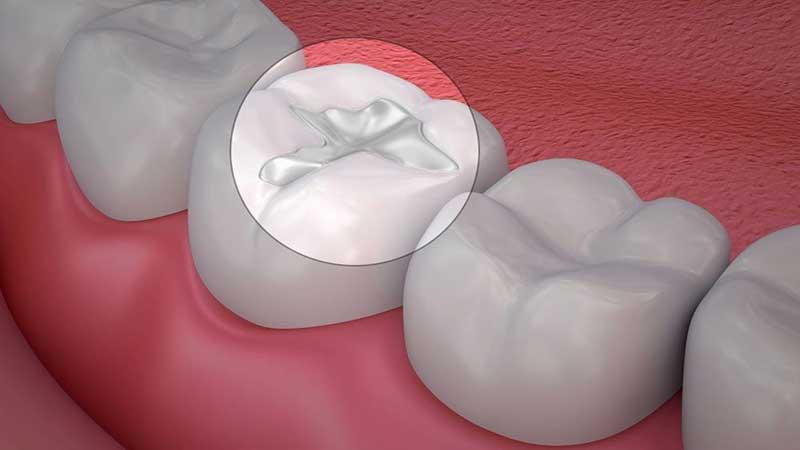 انواع ترمیم دندان با کامپوزیت - انواع کامپوزیت دندان