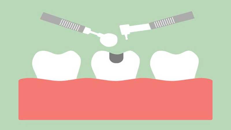 چرا پر کردن (فیلینگ) دندان مهم است؟ - مزایای کامپوزیت دندان