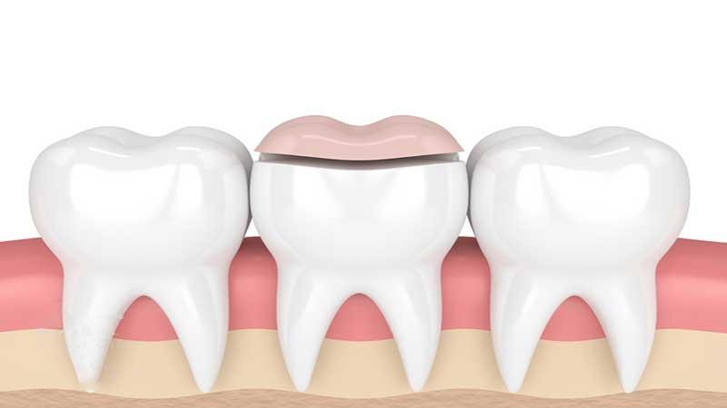 مزایا و معایب پرکردن دندان با کامپوزیت - مزایای کامپوزیت دندان