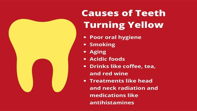 دلیل زرد شدن دندانها چیست - سفید کردن دندان