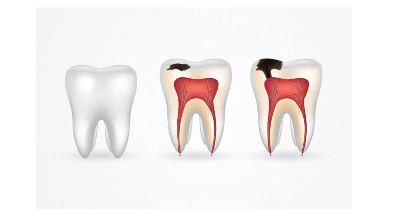طول عمر کامپوزیت دندان و عوامل تأثیرگذار بر آن