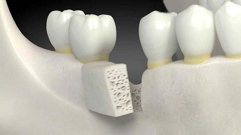 مراقب دندانهای خود باشید - طول عمر کامپوزیت دندان