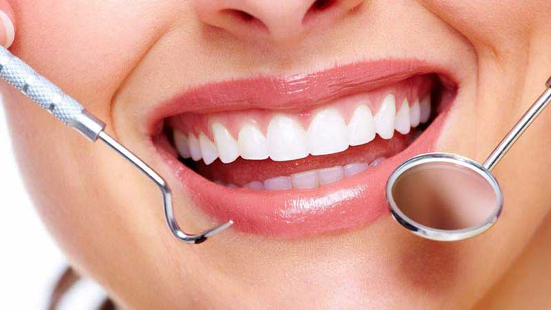 از آنها در موقعیت مناسبی استفاده کنید - طول عمر کامپوزیت دندان