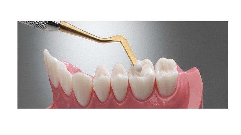 چه عواملی بر طول عمر فیلینگ کامپوزیت تأثیر میگذارند؟ - طول عمر کامپوزیت دندان