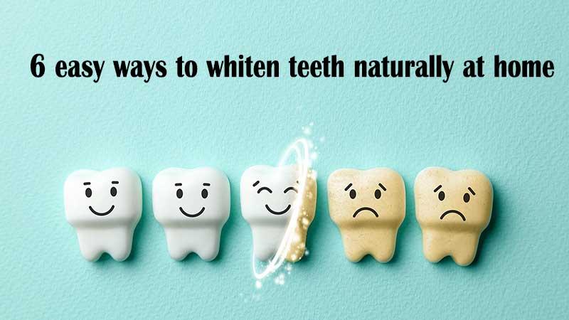 ۶ روش آسان برای سفید کردن دندان ها به صورت طبیعی در خانه