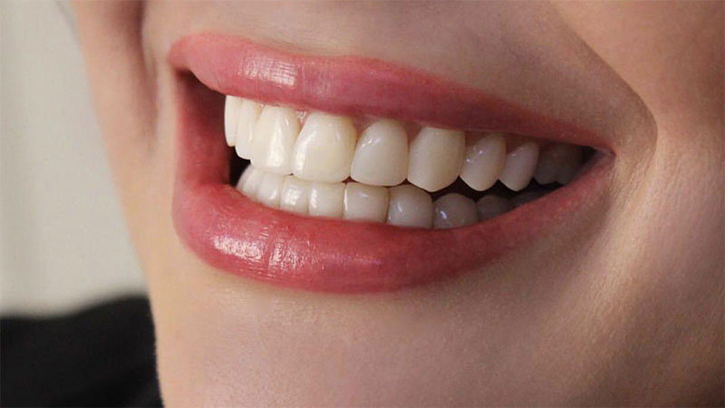 آیا لمینت برای سلامتی دندان مضر است؟