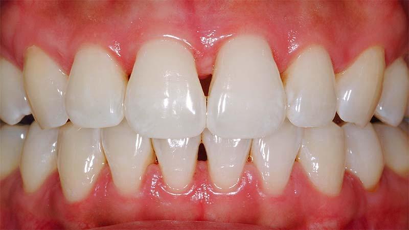 بررسی کردن کامپوزیت دندان به هنگام گاز گرفتن - مراحل کامپوزیت دندان