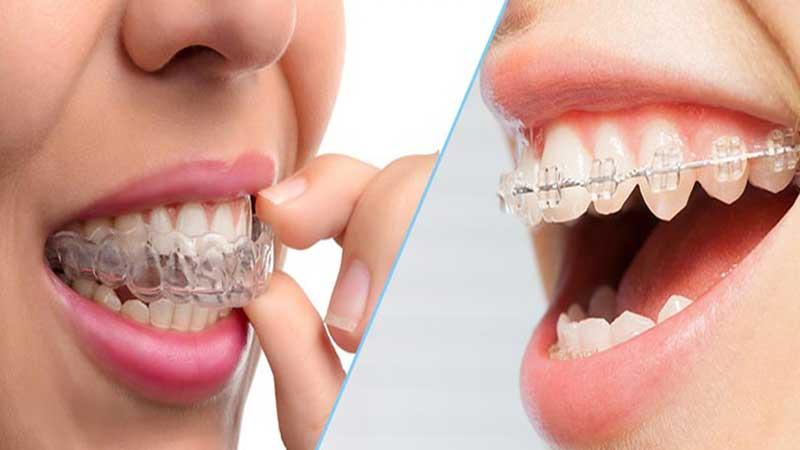 حرکت دندان با دستگاه ارتودنسی متحرک