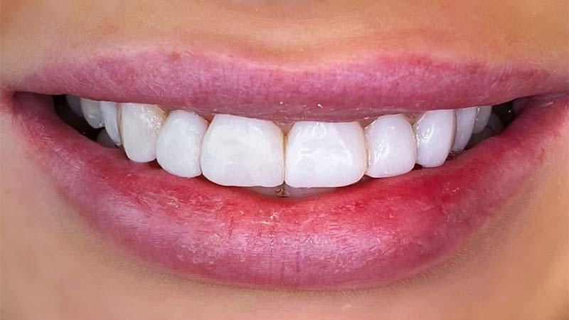 دلایل استفاده از کامپوزیت دندان