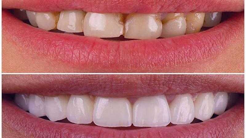 راهحل بروز مشکل پس از لمینت دندان - عوارض لمینت دندان