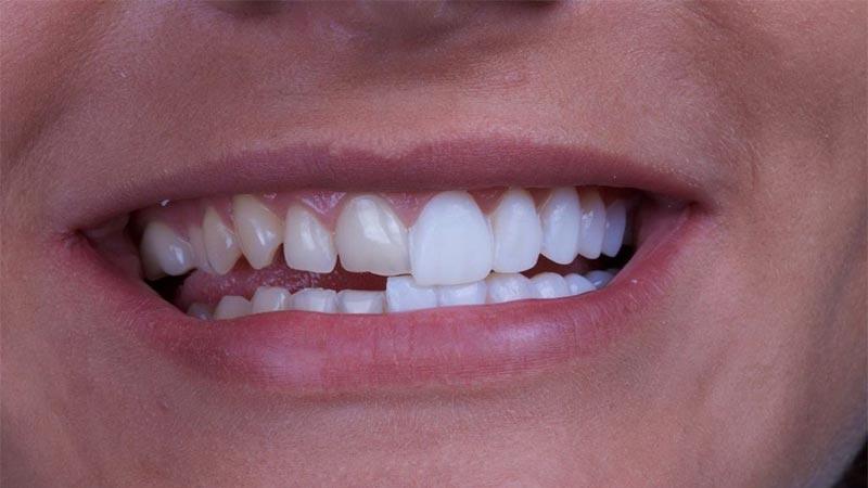 عوارض لمینت دندان