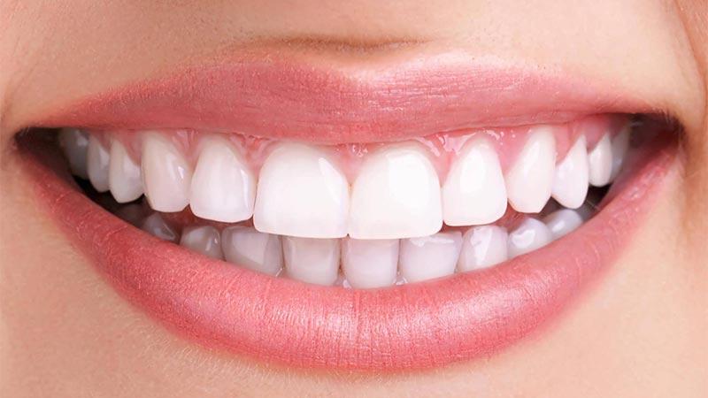 لمینت دندان برای چه کسانی مناسب نمیباشد؟ - عوارض لمینت دندان