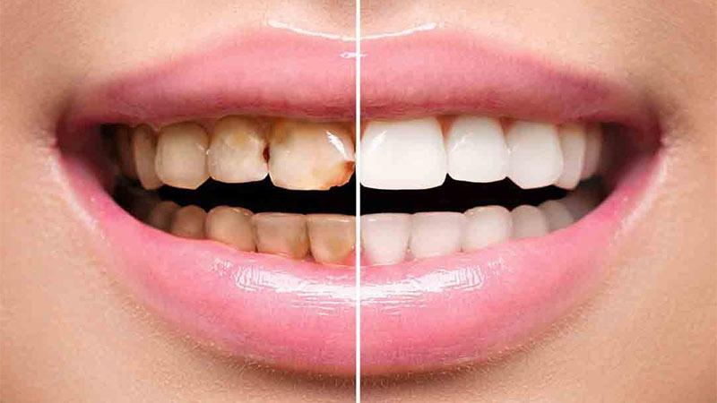 معایب و عوارض لمینت دندان