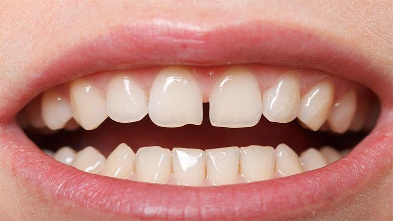 کامپوزیت دندان چیست؟ - مراحل کامپوزیت دندان