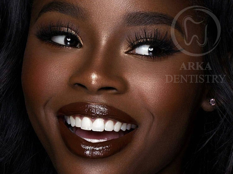 کلینیک دندانپزشکی آرکا - لمینیت۵