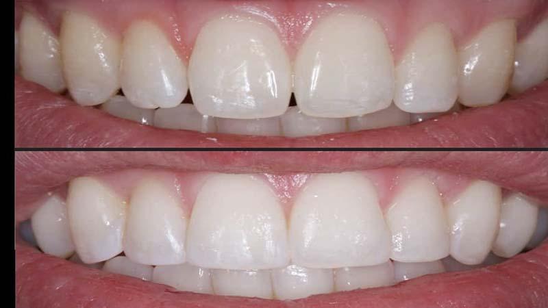گاز کربن و گاز گرفتن خود ارزیابی - مراحل کامپوزیت دندان