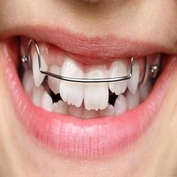 ارتودنسی متحرک برای چه دندانهایی موثر است؟