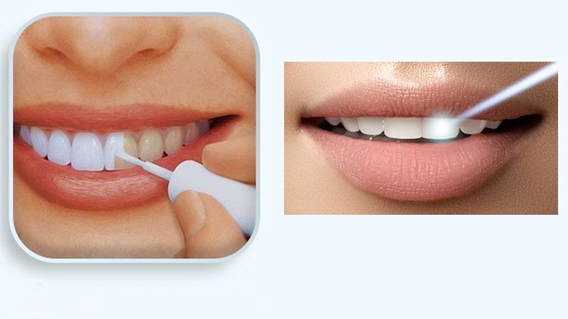 آیا لاک سفید کننده دندان بیخطر است؟