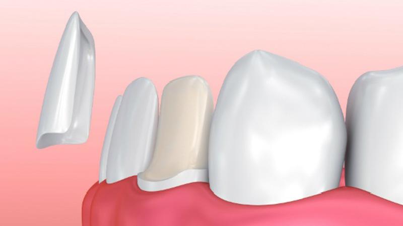 انواع لمینت دندان و مزیتهای آن - تفاوت لمینت و کامپوزیت دندان