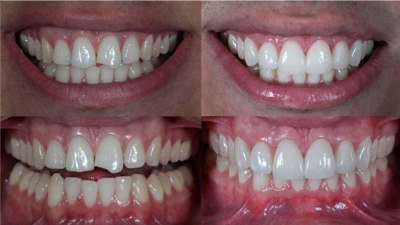انواع لمینت دندان چه مشکلاتی را برطرف میکنند؟