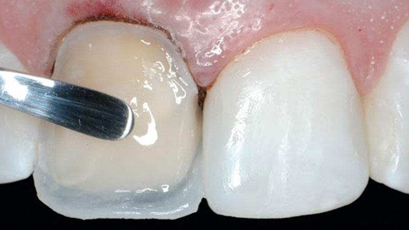انواع کامپوزیت دندان و مزیتهای آن - تفاوت لمینت و کامپوزیت دندان