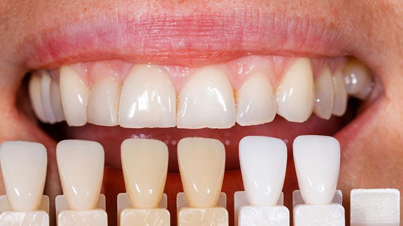 تفاوت کامپوزیت و لمینت دندان در چیست؟