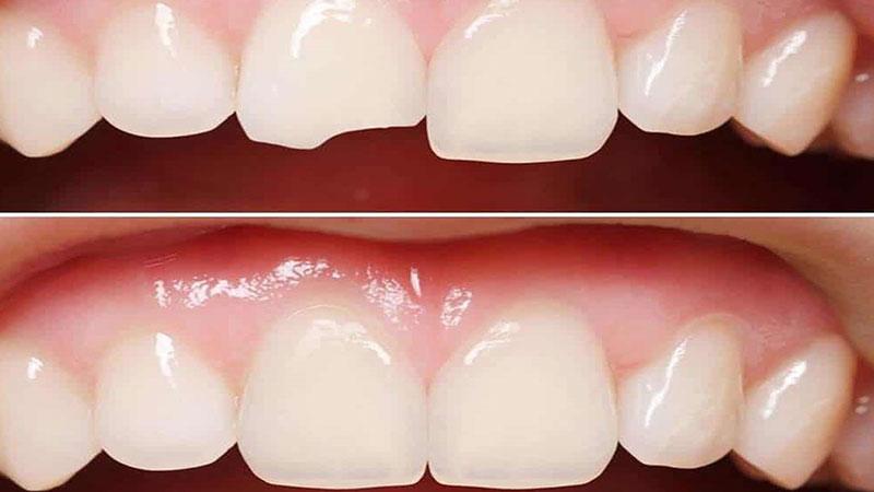 در چه مواردی کامپوزیت دندان توصیه میشود؟ - تفاوت لمینت و کامپوزیت دندان