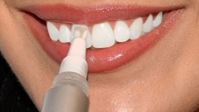 دلایل منع استفاده از لاک سفید کننده دندان