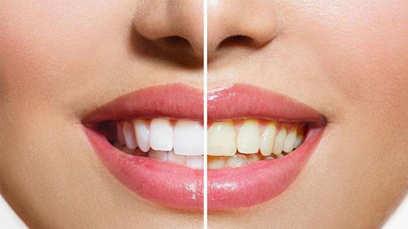 علت تغییر رنگ دندان - لاک سفید کننده دندان