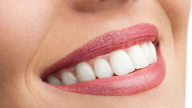 فرق لمینت سرامیکی و ونیر کامپوزیت در چیست؟ - تفاوت لمینت و کامپوزیت دندان