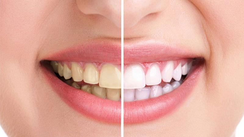 لمینت بهتر است یا کامپوزیت؟ - تفاوت لمینت و کامپوزیت دندان