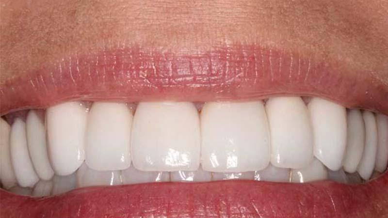 لمینت دندان چگونه انجام میشود؟