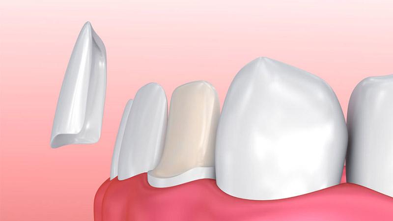 لمینت چه تفاوتی با روکش دندان دارد؟