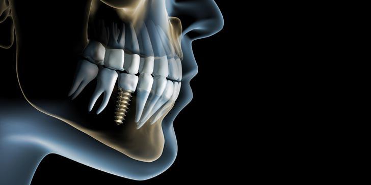 کلینیک-دندانپزشکی-آرکا-پیشنهادات-ویژه۱۴