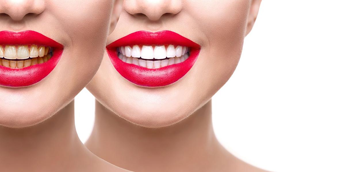 کلینیک-دندانپزشکی-آرکا-پیشنهادات-ویژه۶